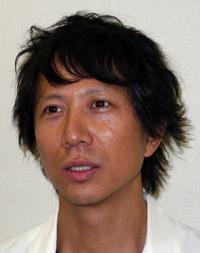 本田△の目の真相が明らかに レーシック手術失敗ではなく、バゼドウ病だと判明