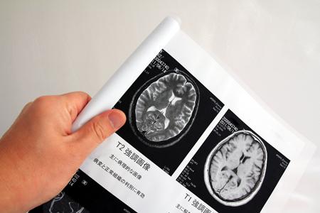 若い世代であっても、脳ドックで「未病」状態を発見し、改善することが重要です