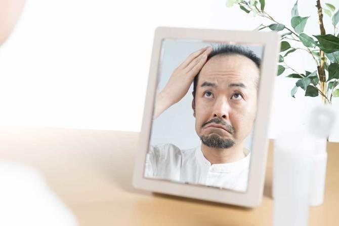 薄毛の人は紫外線に注意すべきです