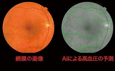 AIは網膜の画像