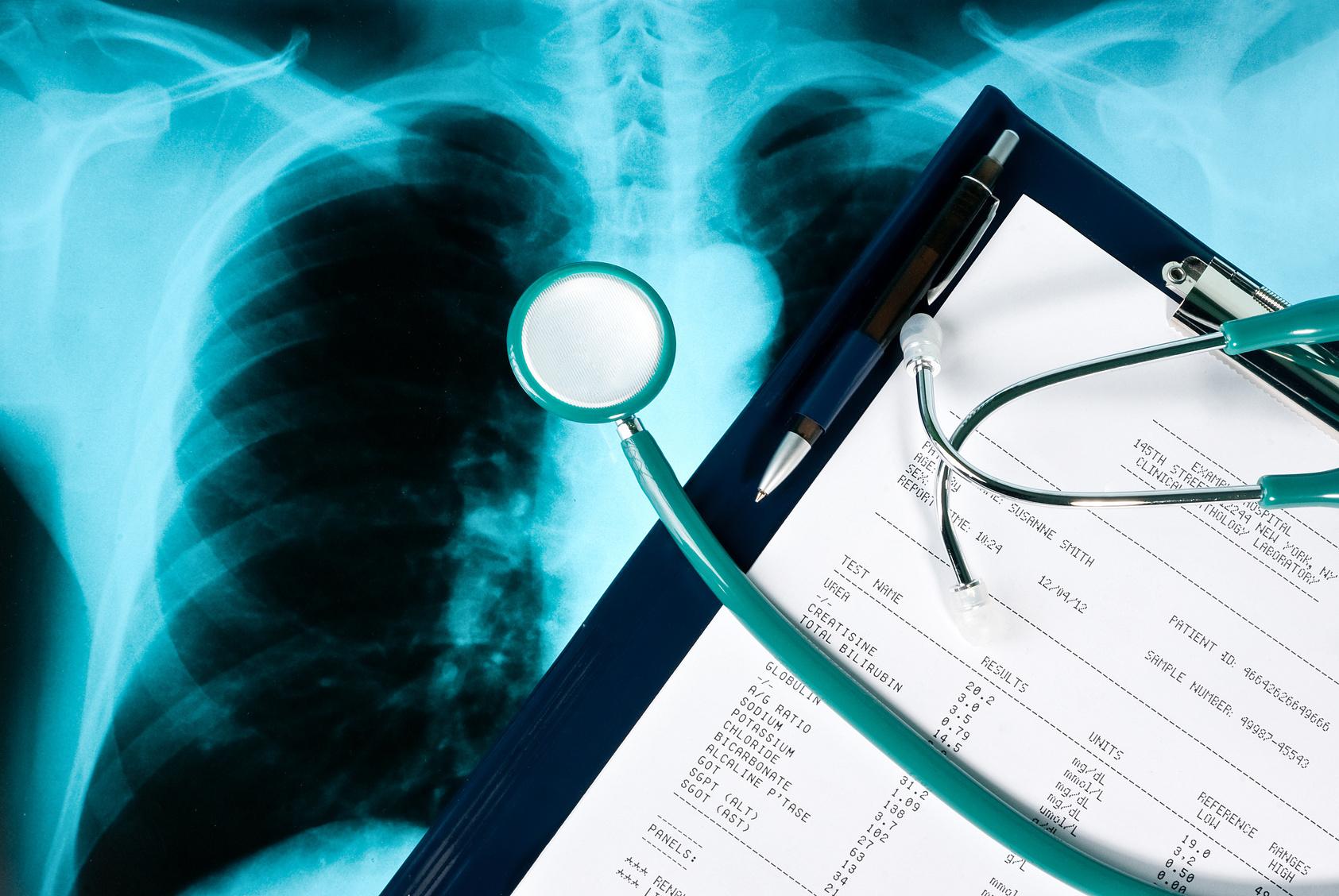 日本人のがん死亡の4.4パーセントはなんとレントゲン検査が原因!?